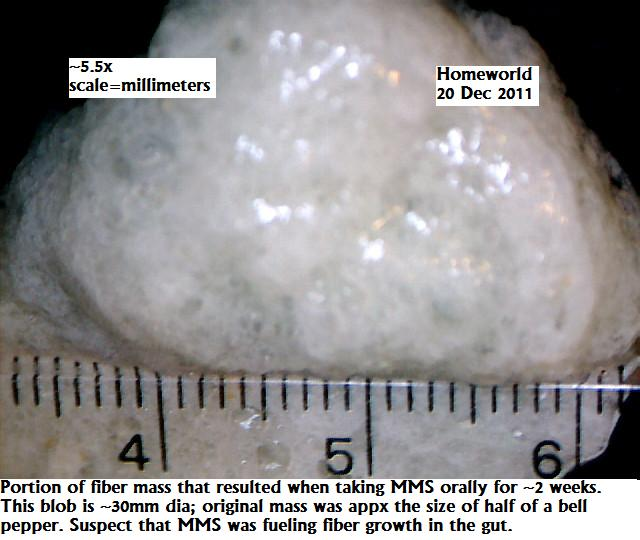 http://curezone.com/upload/_M_Forums/Morgellons/FHW/stool/yarnball_20dec11.jpg