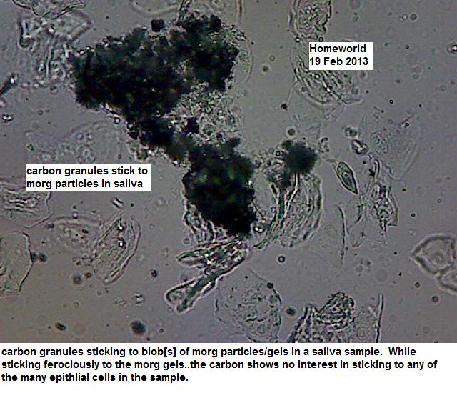 http://curezone.com/upload/_M_Forums/Morgellons/FHW/teeth_mouth/carbonstick19feb13.jpg