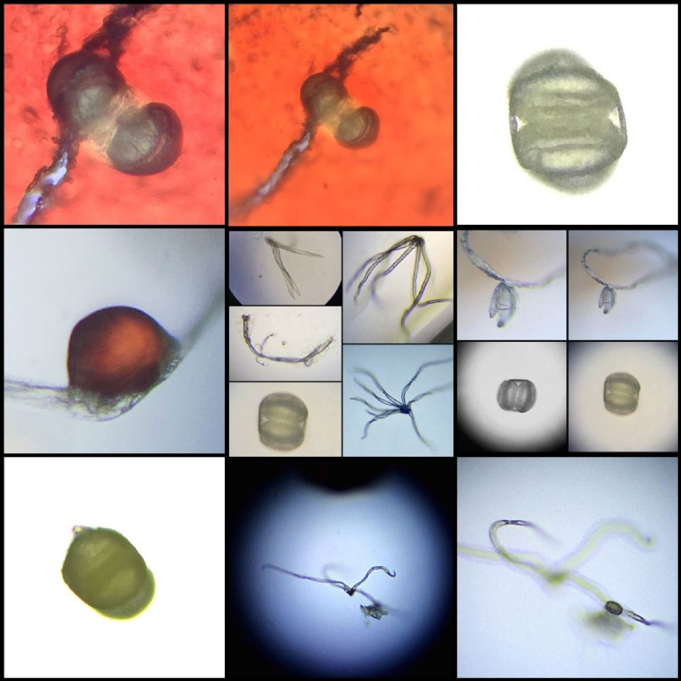 What is Morgellons & How do you get it? - Interviewing