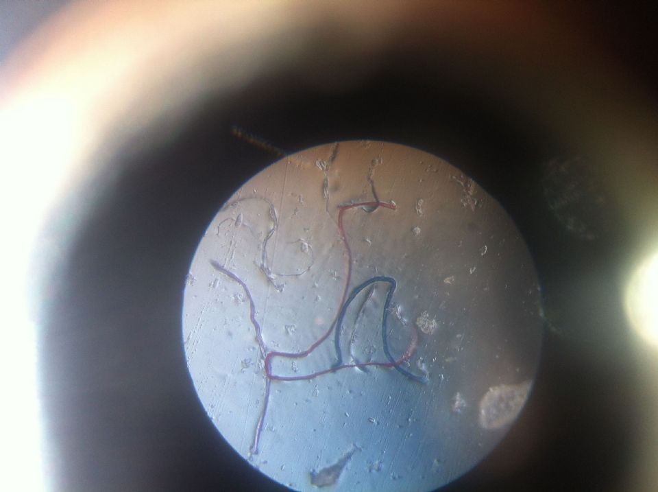 http://curezone.com/upload/_M_Forums/Morgellons/IMG_9713.jpg