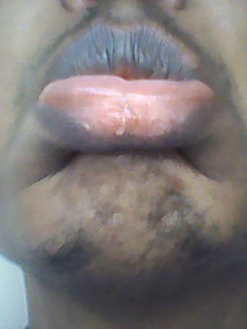 pink bottom lip   Ownerlip co