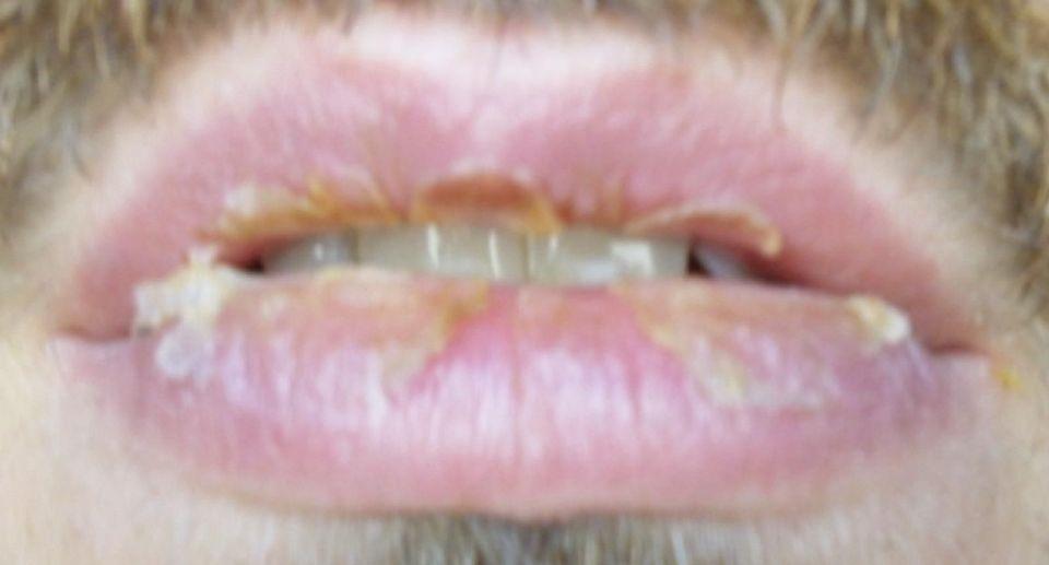 http://curezone.com/upload/_O_P_Forums/Peeling_Lips/1_1_11.jpg