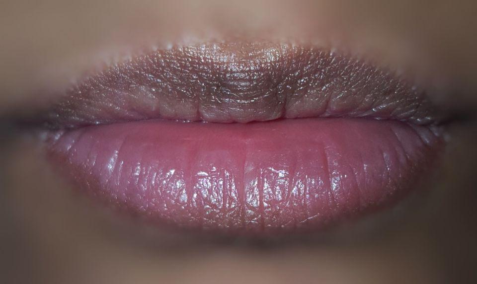 http://curezone.com/upload/_O_P_Forums/Peeling_Lips/20170120_050720_01.jpeg