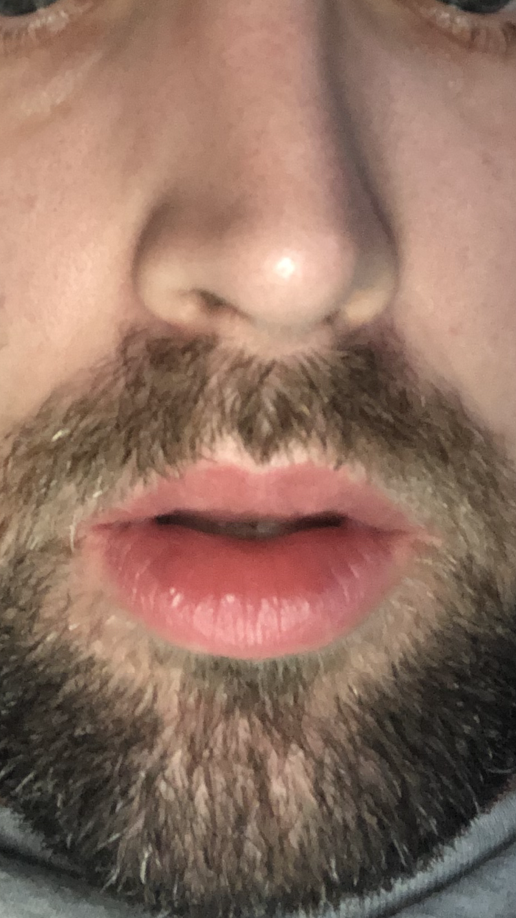 https://www.curezone.org/upload/_O_P_Forums/Peeling_Lips/BCB52999_BD30_474E_8158_32444AB1EC6B.png