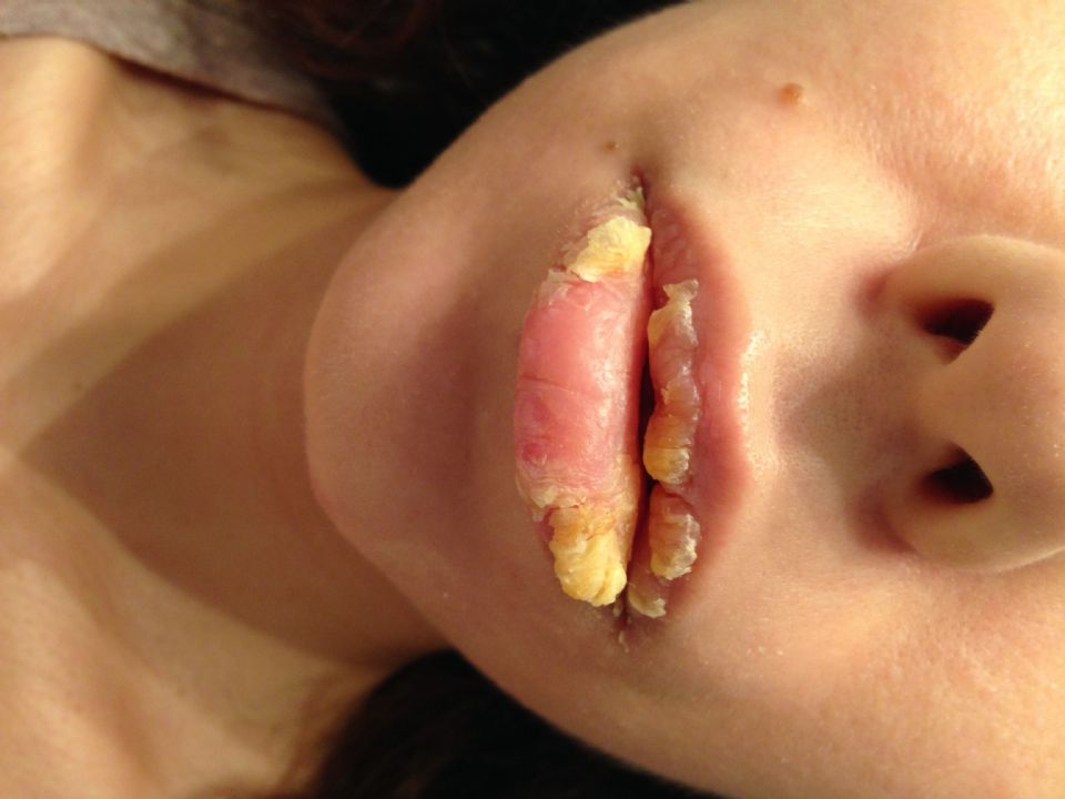 //www.curezone.org/upload/_O_P_Forums/Peeling_Lips/Before_2.jpg