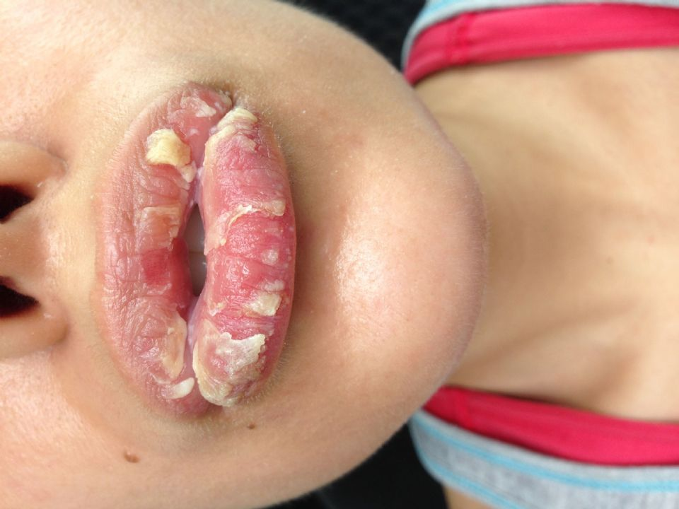 //www.curezone.org/upload/_O_P_Forums/Peeling_Lips/Before_4.jpg