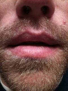 Peeling Lips Natural Cure