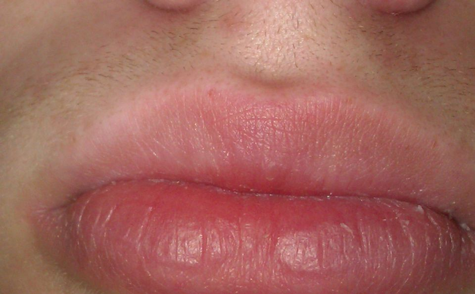 http://curezone.com/upload/_O_P_Forums/Peeling_Lips/Entry_for_forum_0.jpg