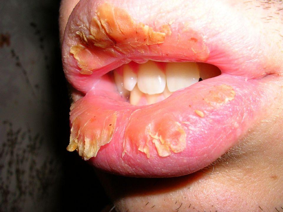 Фото половых губ старушек 22 фотография