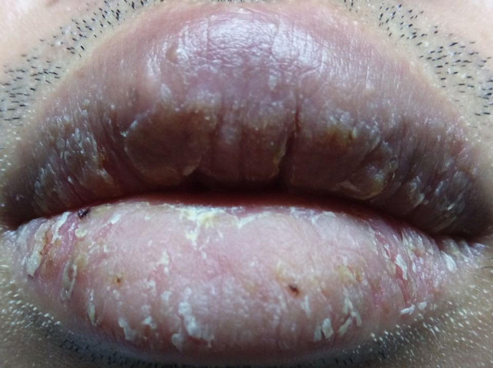 https://www.curezone.org/upload/_O_P_Forums/Peeling_Lips/IMAG0246.jpg