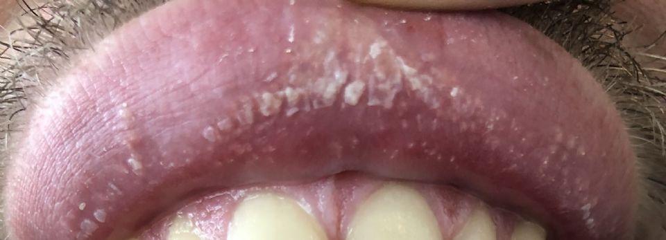 https://www.curezone.org/upload/_O_P_Forums/Peeling_Lips/IMG_0224.jpg