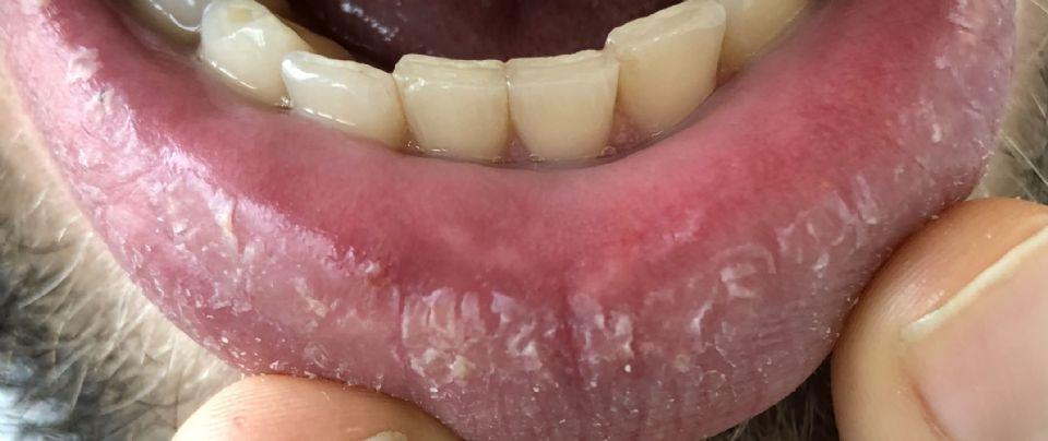 https://www.curezone.org/upload/_O_P_Forums/Peeling_Lips/IMG_0225.jpg