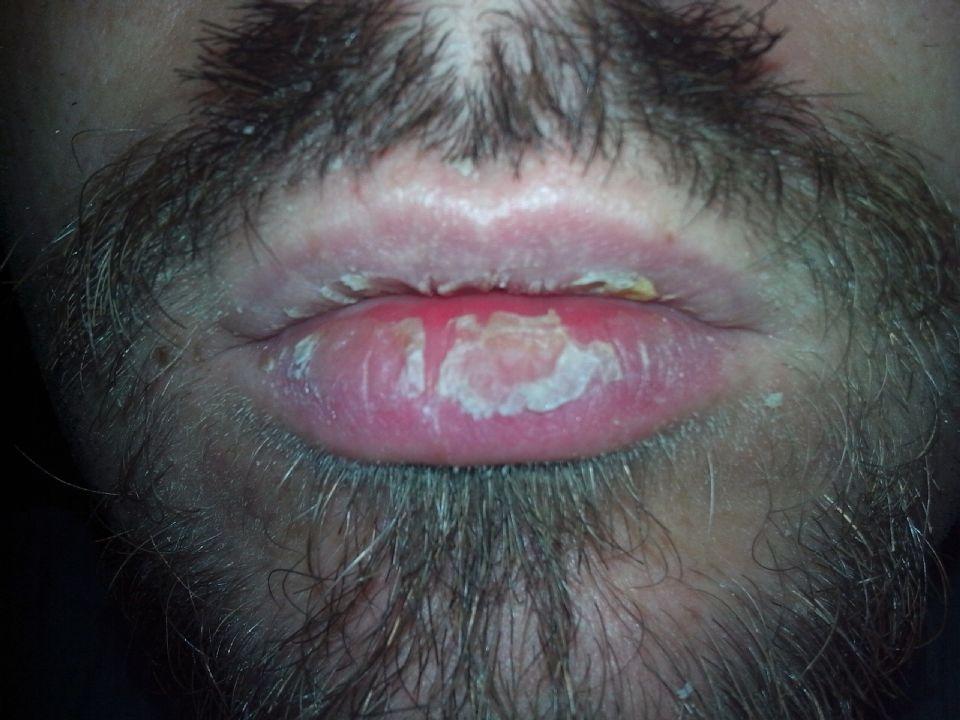 http://curezone.com/upload/_O_P_Forums/Peeling_Lips/IMG_20160513_111447.jpg