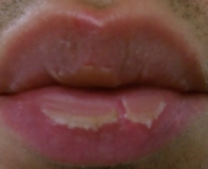 http://curezone.com/upload/_O_P_Forums/Peeling_Lips/Ibinns/Left_Alone.jpg