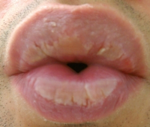 http://curezone.com/upload/_O_P_Forums/Peeling_Lips/Ibinns/Long_Exposure_To_Water.jpg
