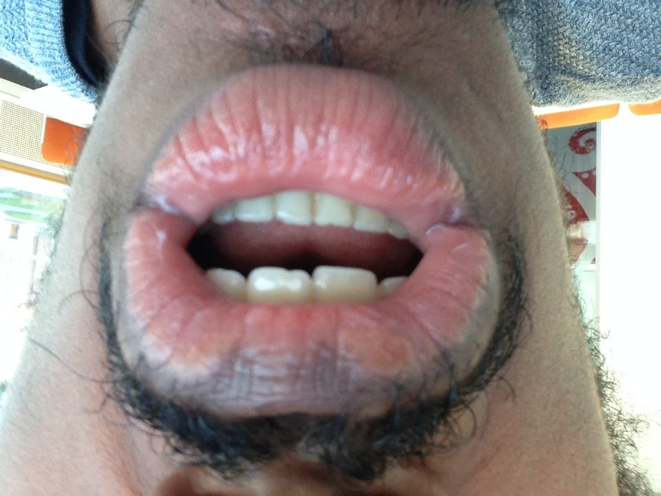 http://curezone.com/upload/_O_P_Forums/Peeling_Lips/InSearchOfBro/Day_1_InSearc/IMG_3483.jpg