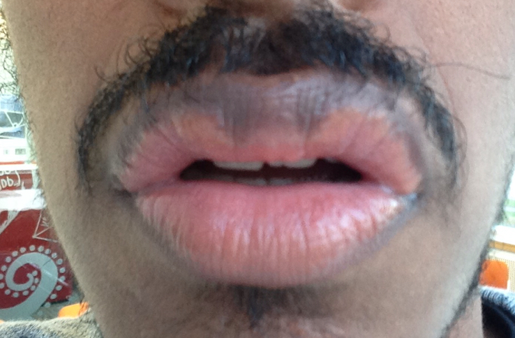http://curezone.com/upload/_O_P_Forums/Peeling_Lips/InSearchOfBro/Day_1_InSearc/IMG_3486.jpg