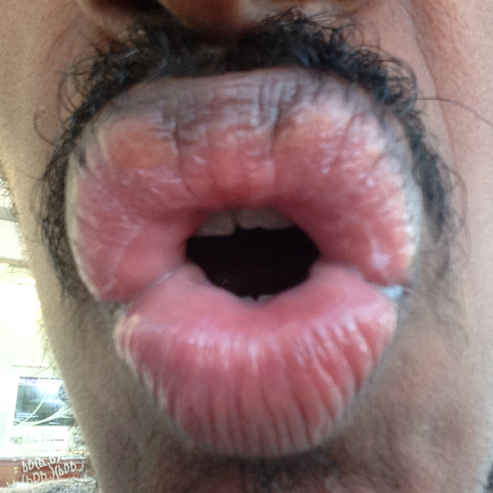 http://curezone.com/upload/_O_P_Forums/Peeling_Lips/InSearchOfBro/Day_1_InSearc/IMG_3487.jpg