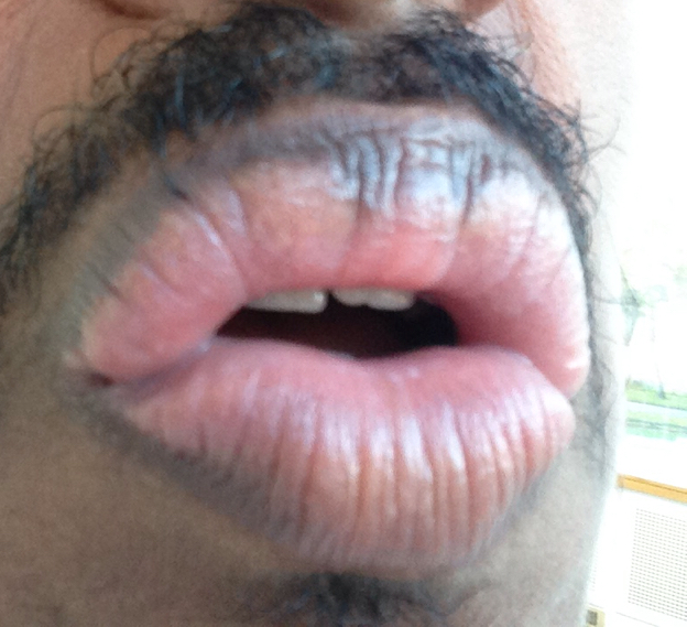 http://curezone.com/upload/_O_P_Forums/Peeling_Lips/InSearchOfBro/Day_1_InSearc/IMG_3493.jpg
