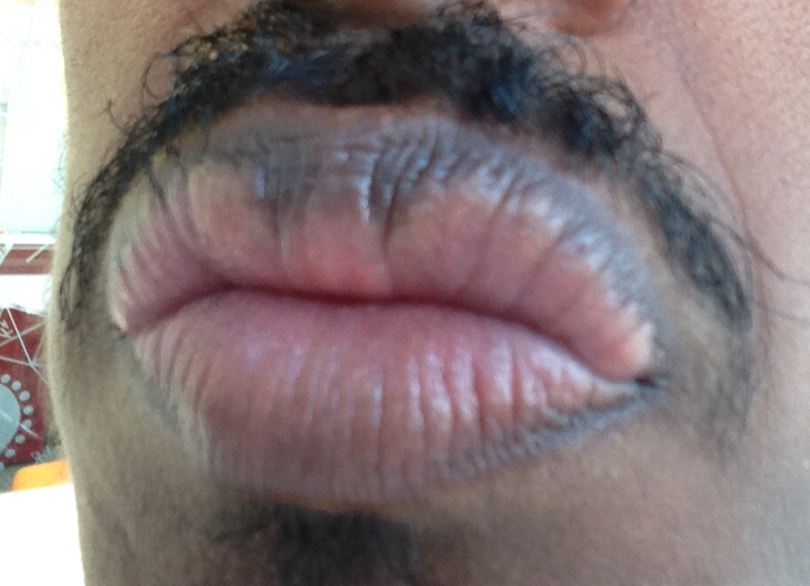 http://curezone.com/upload/_O_P_Forums/Peeling_Lips/InSearchOfBro/Day_1_InSearc/IMG_3494.jpg