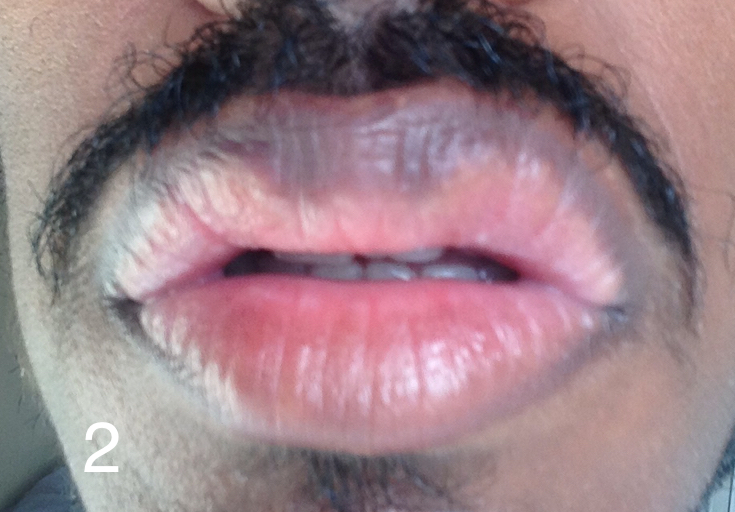 http://curezone.com/upload/_O_P_Forums/Peeling_Lips/InSearchOfBro/Day_2/IMG_3510.jpg