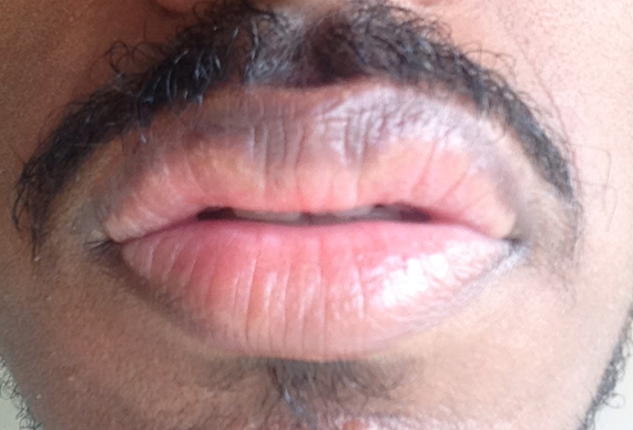 http://curezone.com/upload/_O_P_Forums/Peeling_Lips/InSearchOfBro/Day_2/IMG_3513.jpg