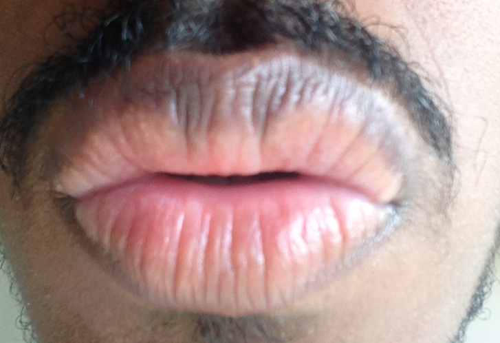 http://curezone.com/upload/_O_P_Forums/Peeling_Lips/InSearchOfBro/Day_2/IMG_3514.jpg