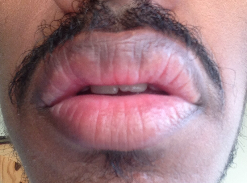 http://curezone.com/upload/_O_P_Forums/Peeling_Lips/InSearchOfBro/Day_2/IMG_3515.jpg