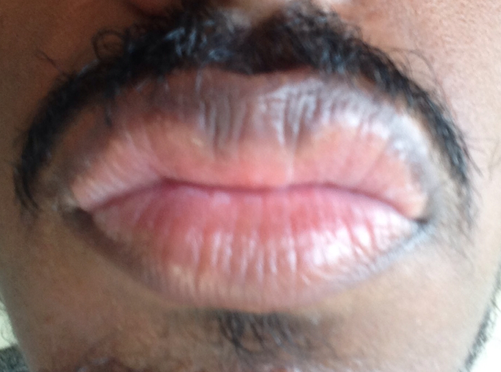 http://curezone.com/upload/_O_P_Forums/Peeling_Lips/InSearchOfBro/Day_2/IMG_3516.jpg