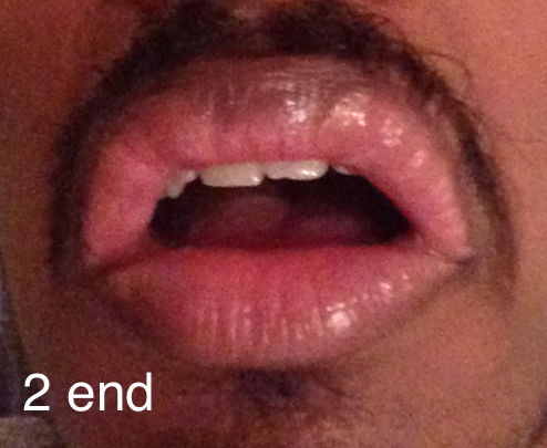 http://curezone.com/upload/_O_P_Forums/Peeling_Lips/InSearchOfBro/Day_2/IMG_3529.jpg