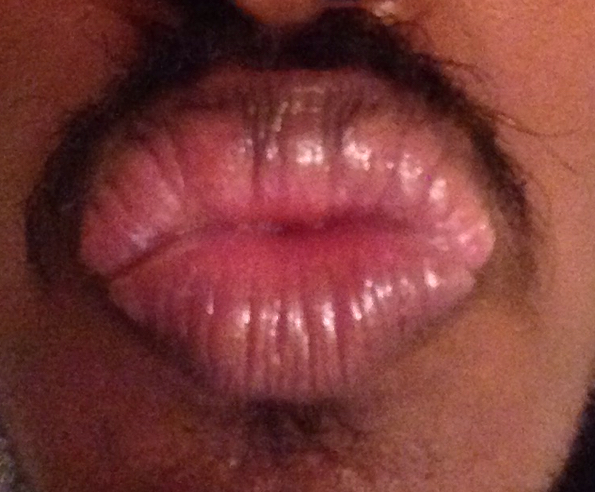 http://curezone.com/upload/_O_P_Forums/Peeling_Lips/InSearchOfBro/Day_2/IMG_3530.jpg