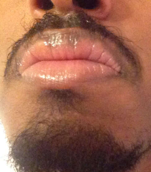 http://curezone.com/upload/_O_P_Forums/Peeling_Lips/InSearchOfBro/Day_2/IMG_3531.jpg