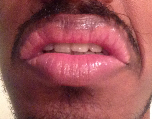 http://curezone.com/upload/_O_P_Forums/Peeling_Lips/InSearchOfBro/Day_2/IMG_3532.jpg