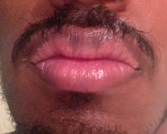 http://curezone.com/upload/_O_P_Forums/Peeling_Lips/InSearchOfBro/Day_2/IMG_3533.jpg