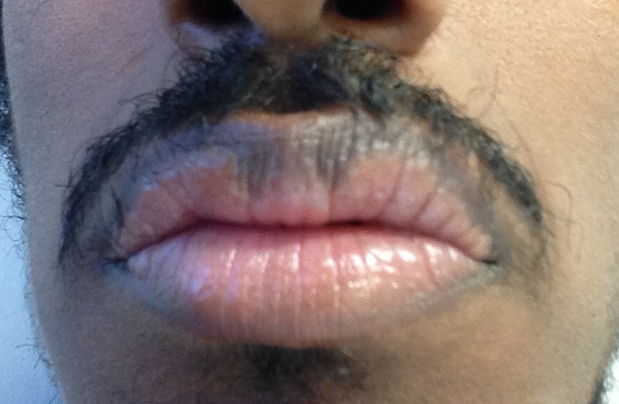 http://curezone.com/upload/_O_P_Forums/Peeling_Lips/InSearchOfBro/Day_3/IMG_3549.jpg