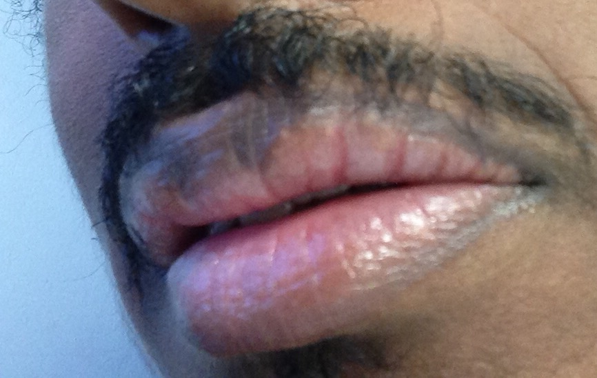 http://curezone.com/upload/_O_P_Forums/Peeling_Lips/InSearchOfBro/Day_3/IMG_3550.jpg