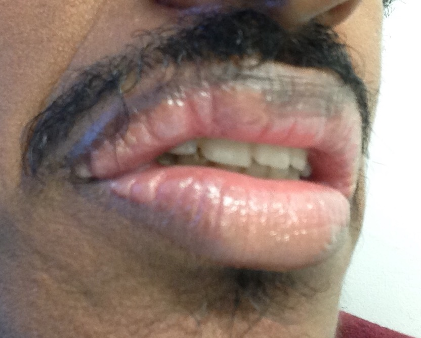 http://curezone.com/upload/_O_P_Forums/Peeling_Lips/InSearchOfBro/Day_3/IMG_3551.jpg
