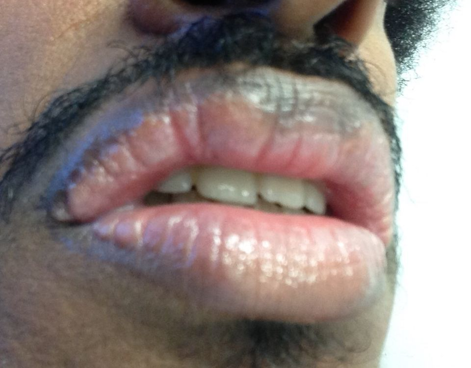 http://curezone.com/upload/_O_P_Forums/Peeling_Lips/InSearchOfBro/Day_3/IMG_3552.jpg