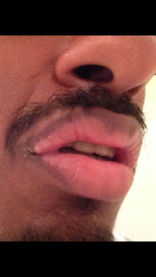http://curezone.com/upload/_O_P_Forums/Peeling_Lips/InSearchOfBro/Day_3/IMG_3554.png