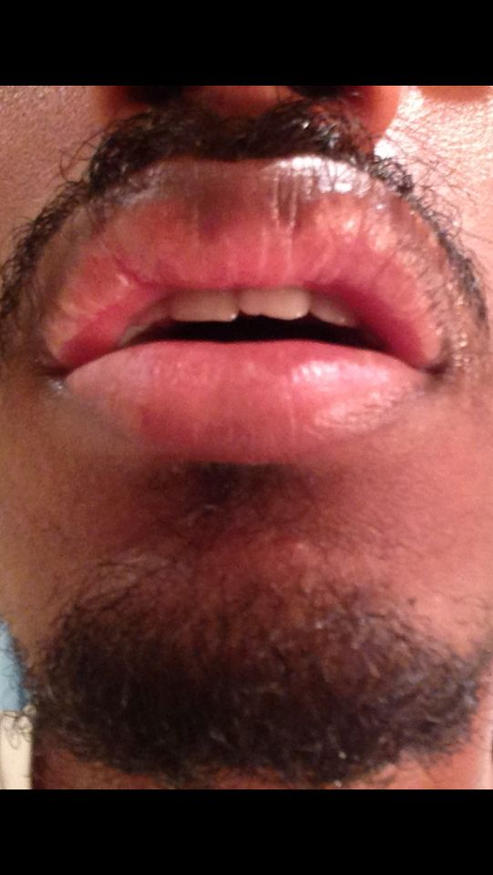 http://curezone.com/upload/_O_P_Forums/Peeling_Lips/InSearchOfBro/Day_3/IMG_3555.png