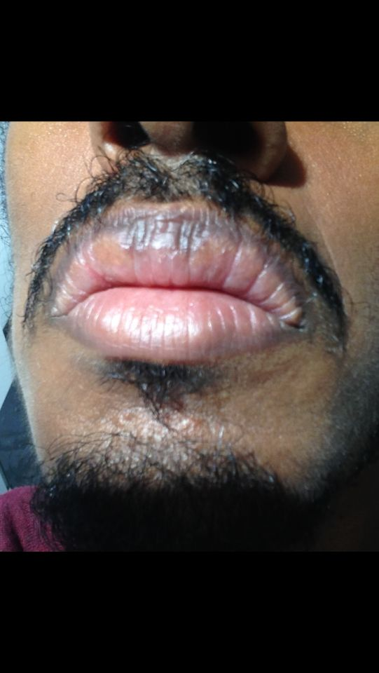 http://curezone.com/upload/_O_P_Forums/Peeling_Lips/InSearchOfBro/Day_3/IMG_3558.png