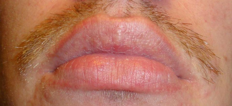 Serious Lip Peeling Issue - Dermatology - MedHelp