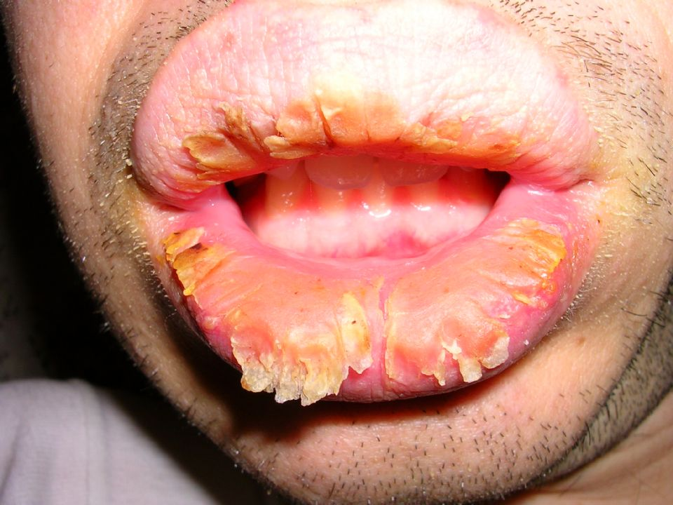 Exfoliative cheilitis ...