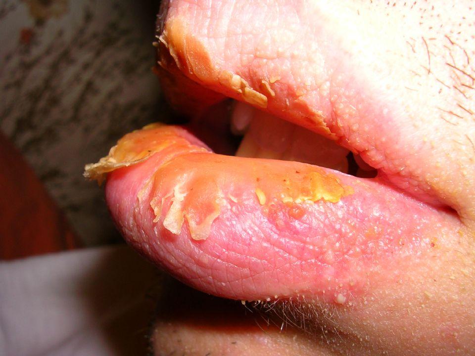 Exfoliative Cheilitis Cure Natural