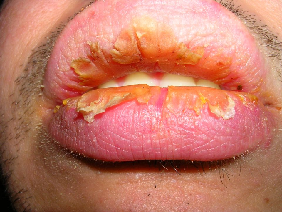 Exfoliative cheilitis after 12 years 9 5 On CureZone Image ...