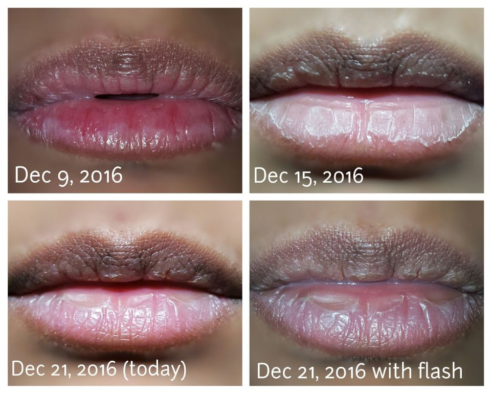 http://curezone.com/upload/_O_P_Forums/Peeling_Lips/PhotoGrid_1482267900854.jpg