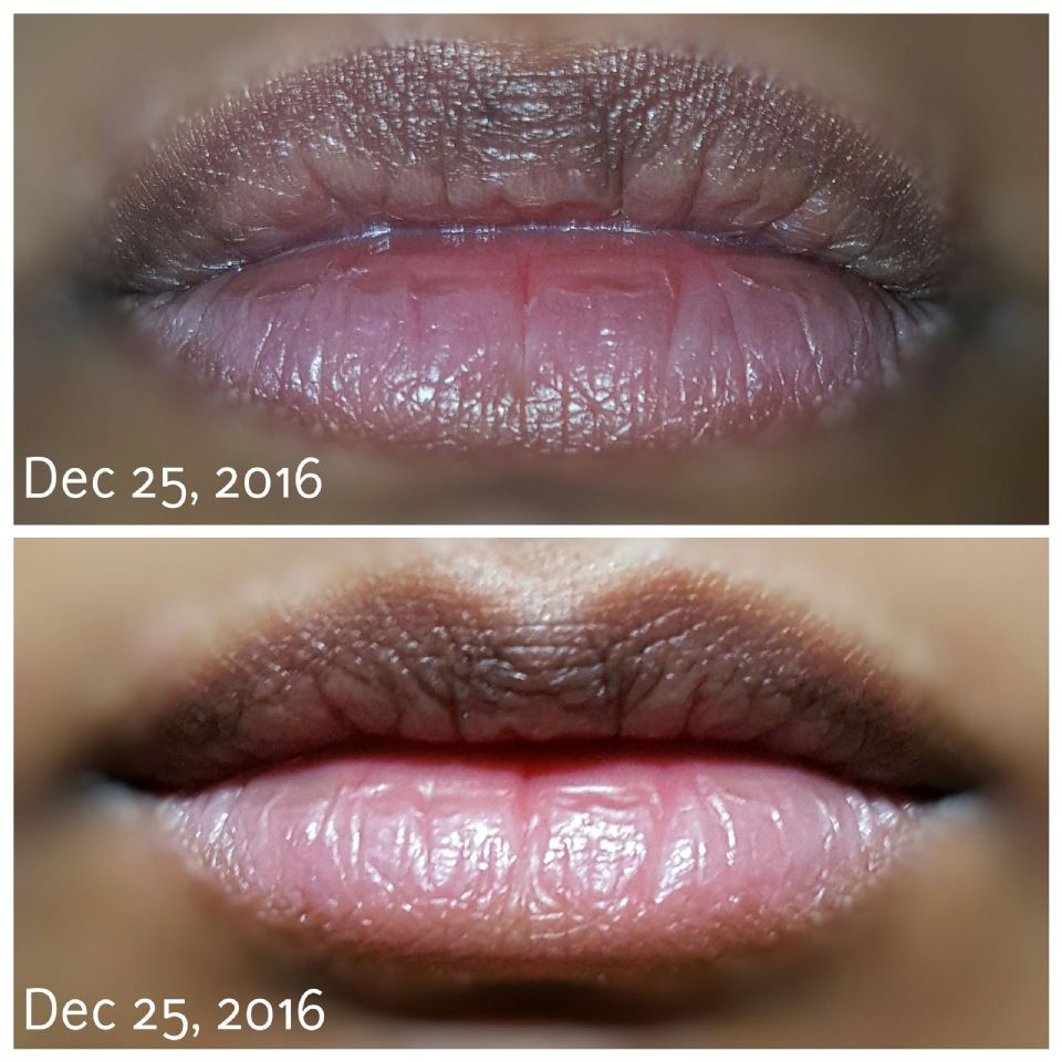 http://curezone.com/upload/_O_P_Forums/Peeling_Lips/PhotoGrid_1482634142810.jpg