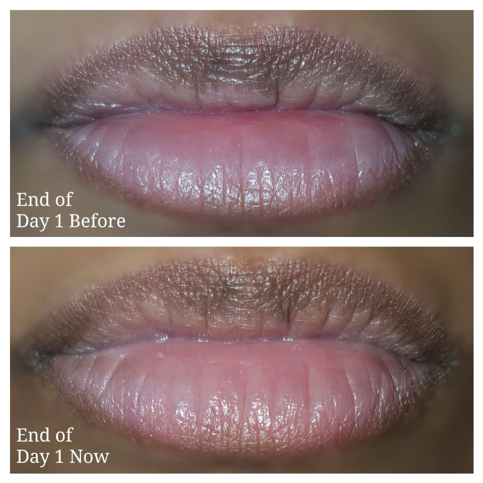 http://curezone.com/upload/_O_P_Forums/Peeling_Lips/PhotoGrid_1490563002355.jpg