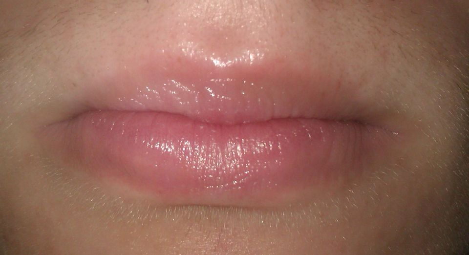 http://curezone.com/upload/_O_P_Forums/Peeling_Lips/entry_for_forum_2.jpg