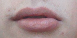http://curezone.com/upload/_O_P_Forums/Peeling_Lips/entry_for_forum_previous.jpg